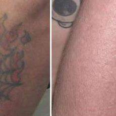 Удаление татуировок: до и после